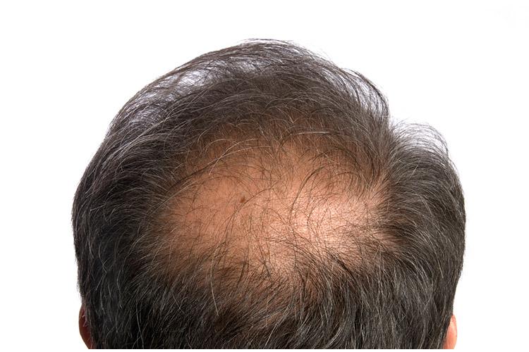 薄毛のタイプ