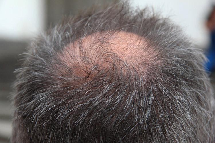 成長期の薄毛