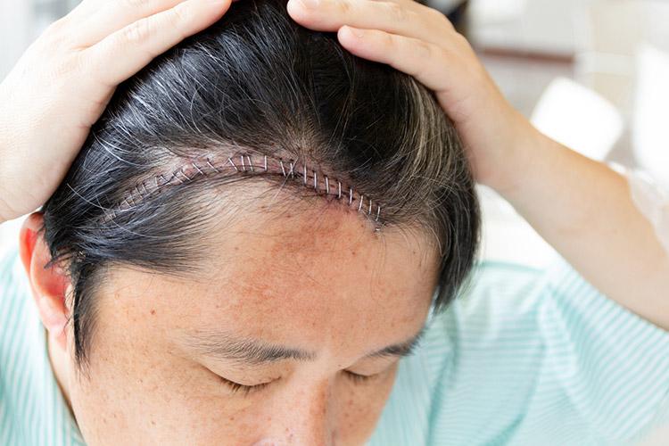頭部の傷跡