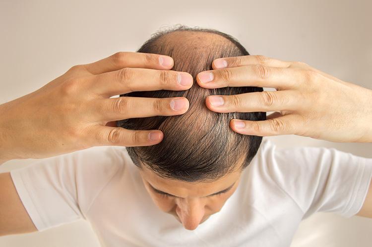 薄毛の進行を防ぐ