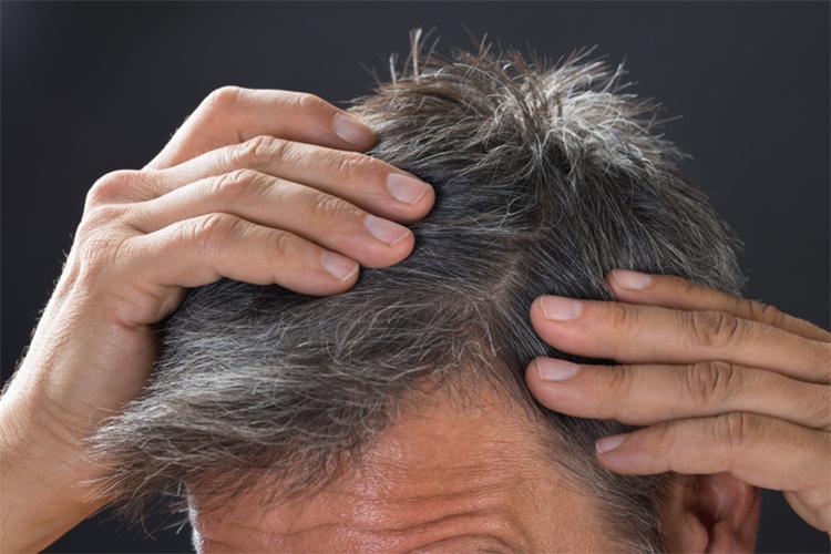 植毛治療の効果を左右する?かさぶたの正しい対処法