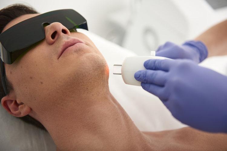 医療レーザー脱毛とは?高出力の照射で毛根を破壊する