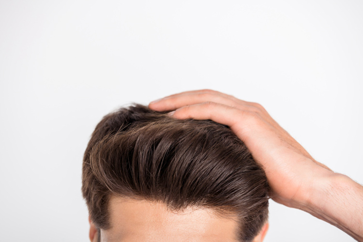 AGAは予防できる!頭皮環境を整えることが大切