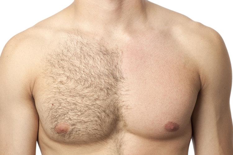 除毛とは?肌表面に出ている毛を除去すること