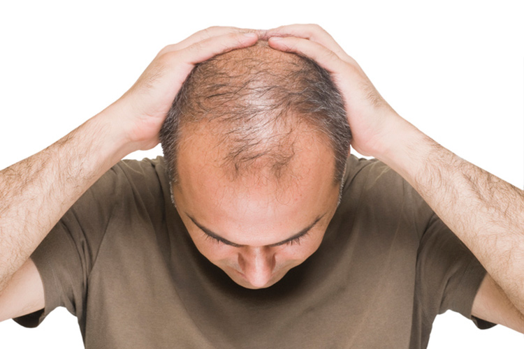 【はじめに】AGAとヘアサイクルについて知ろう!
