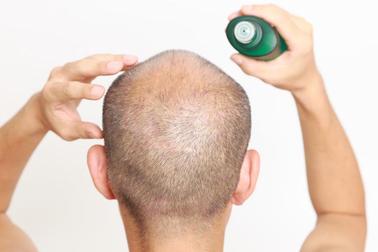 育毛剤と発毛剤の効果や気になる副作用を徹底解説!