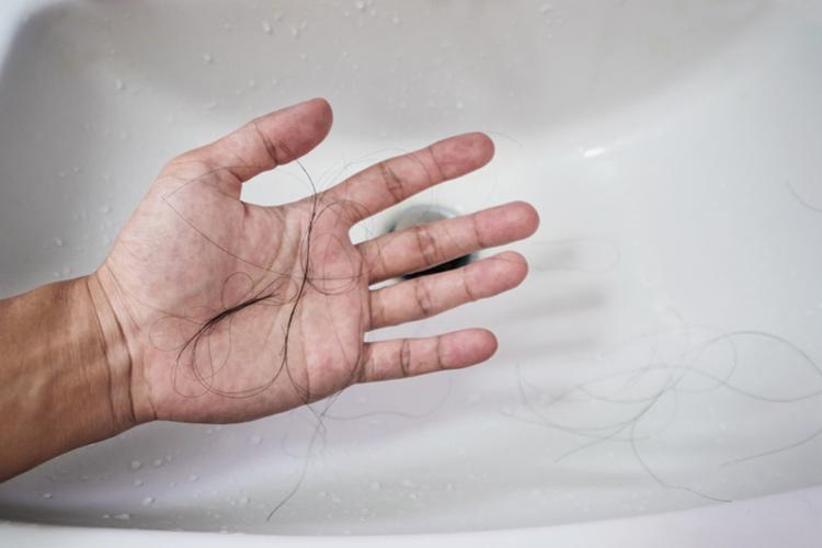 AGA治療で初期脱毛は一般的!基本は心配なし◎