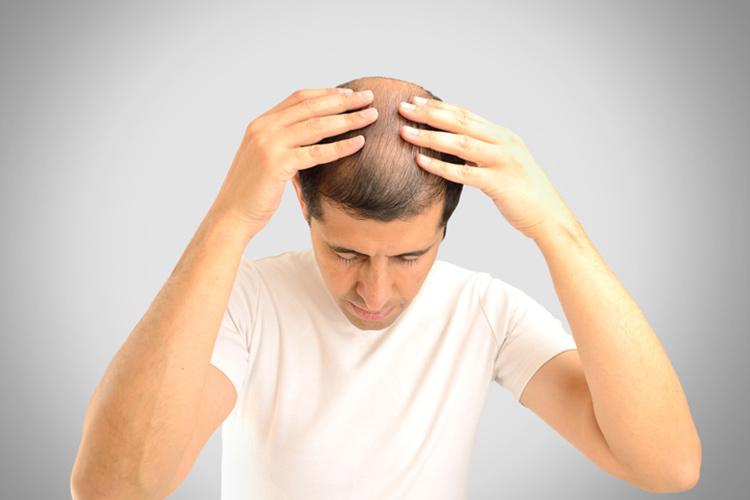 【根拠①】オナニーによる男性ホルモンが薄毛の原因?
