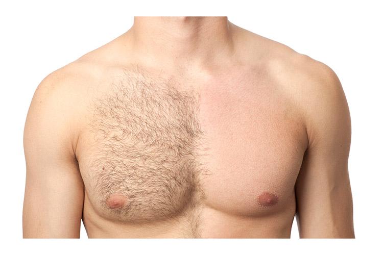 【はじめに】自宅で剛毛を処理する方法はあるの?
