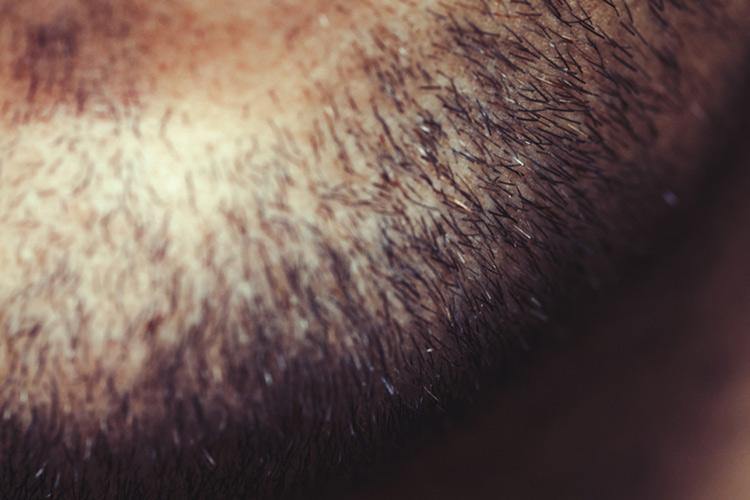 【体験談】脱毛したらヒゲが濃くなったと感じる人は多い!